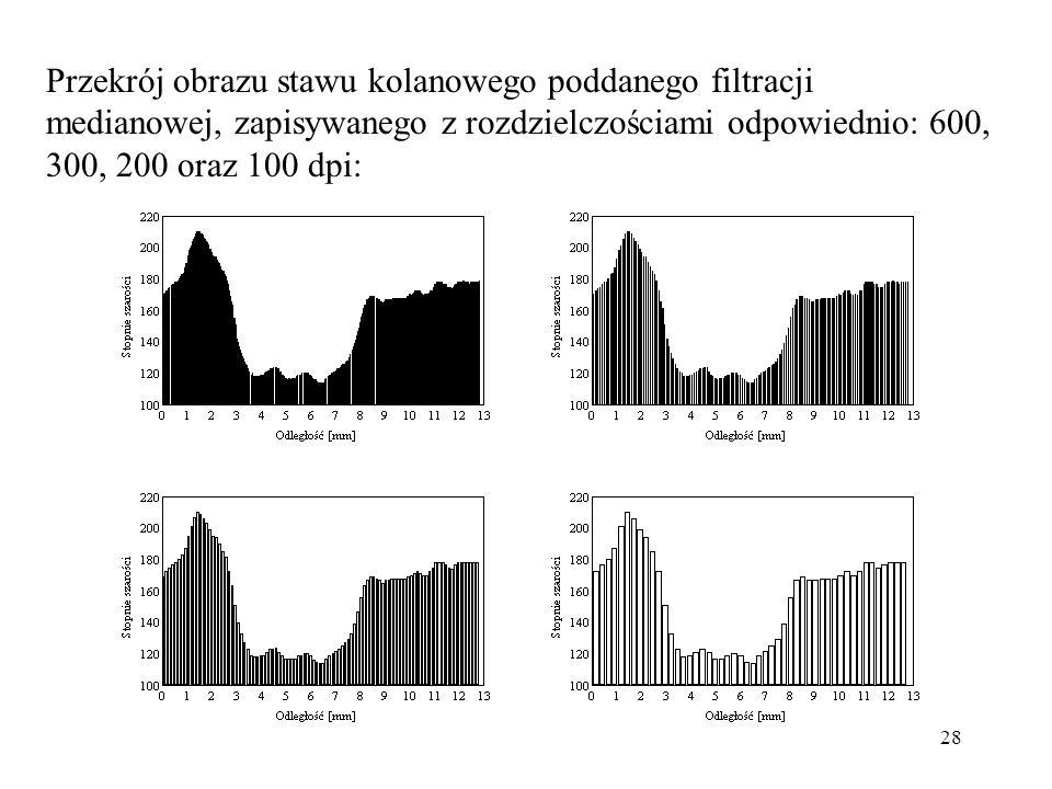 28 Przekrój obrazu stawu kolanowego poddanego filtracji medianowej, zapisywanego z rozdzielczościami odpowiednio: 600, 300, 200 oraz 100 dpi: