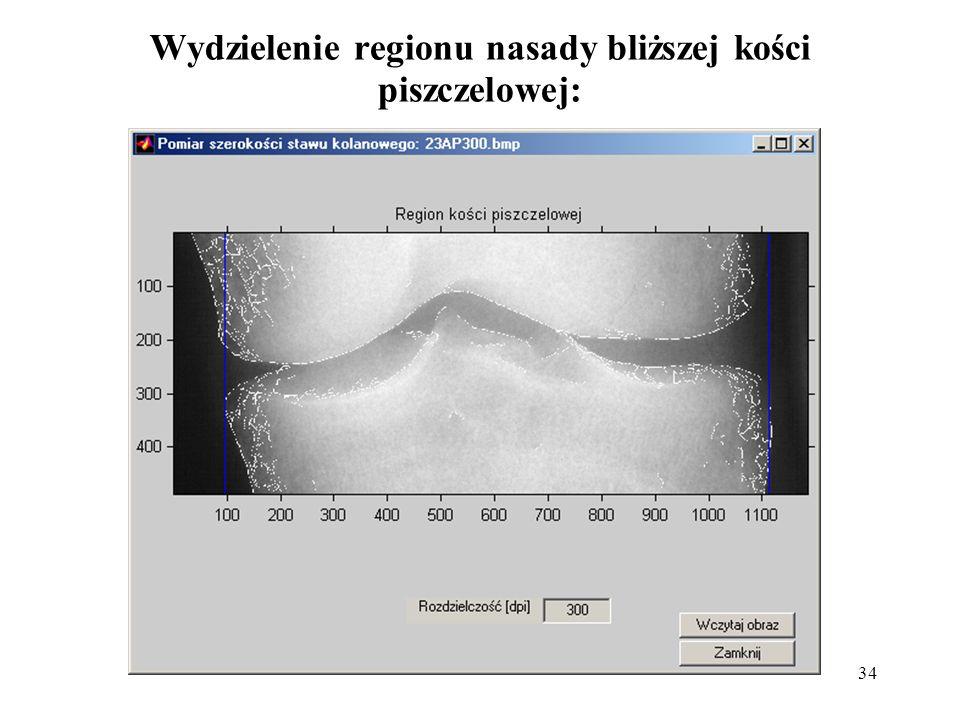 34 Wydzielenie regionu nasady bliższej kości piszczelowej: