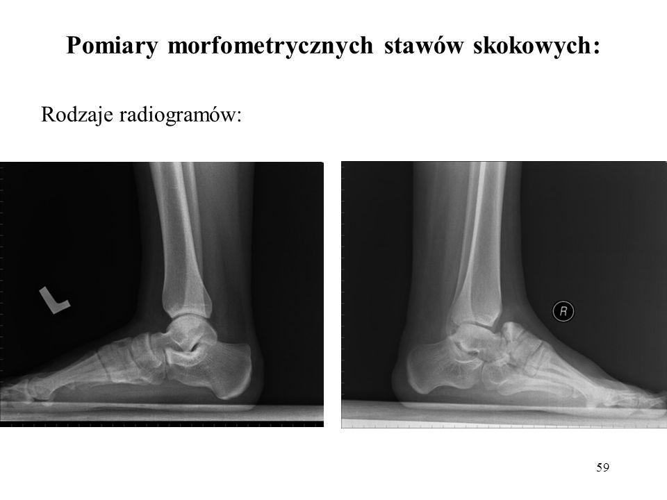 59 Pomiary morfometrycznych stawów skokowych: Rodzaje radiogramów: