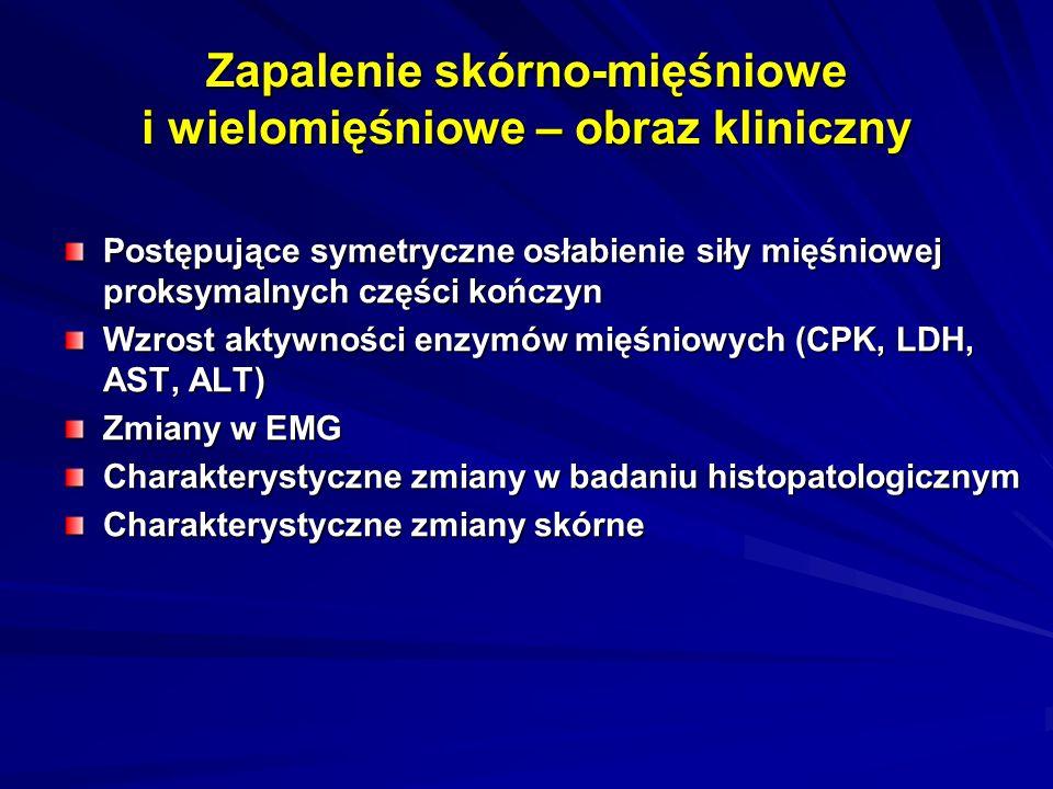 Zapalenie skórno-mięśniowe i wielomięśniowe – obraz kliniczny Postępujące symetryczne osłabienie siły mięśniowej proksymalnych części kończyn Wzrost aktywności enzymów mięśniowych (CPK, LDH, AST, ALT) Zmiany w EMG Charakterystyczne zmiany w badaniu histopatologicznym Charakterystyczne zmiany skórne