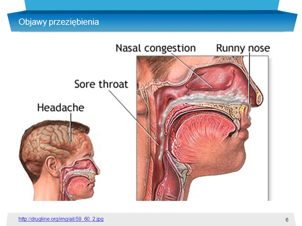 6 Objawy przeziębienia http://drugline.org/img/ail/59_60_2.jpg
