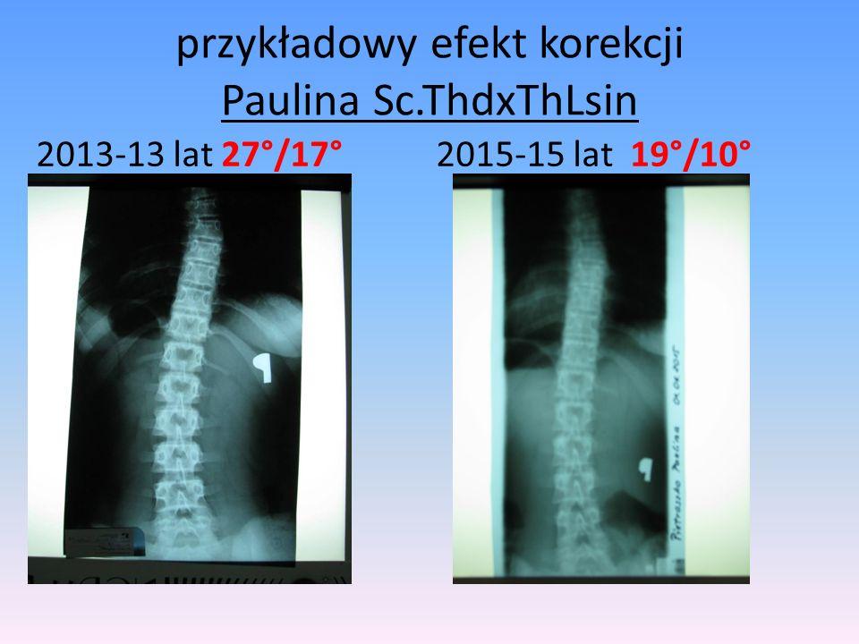 przykładowy efekt korekcji Paulina Sc.ThdxThLsin 2013-13 lat 27°/17° 2015-15 lat 19°/10°