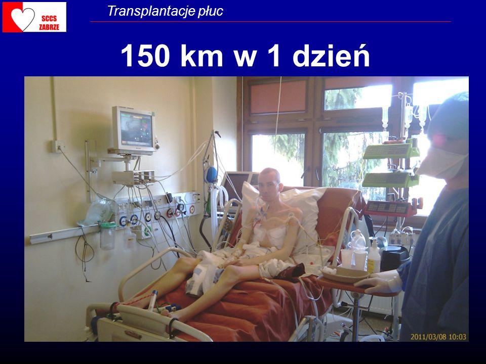 Transplantacje płuc 150 km w 1 dzień