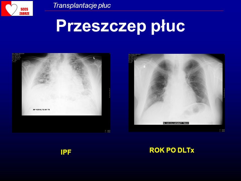 Transplantacje płuc WSKAZANIA DO PRZESZCZEPU PŁUC - Zabrze Emphysema/POChP-23 IPF, PF-22 IPAH-10 Sarcoidosis-5 Mukowiscydoza-5 Silicosis-2 ReLTx-3 Histiocytosis-2 Congenital Heart Disease-1 OB-1 LAM-1