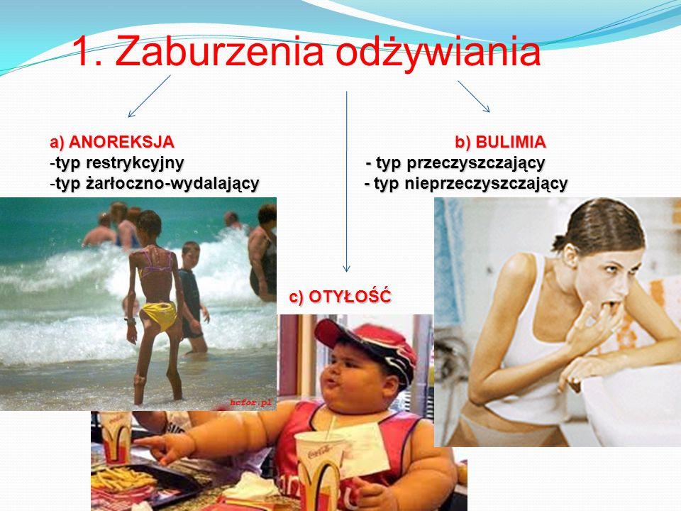 1. Zaburzenia odżywiania a) ANOREKSJA b) BULIMIA -typ restrykcyjny - typ przeczyszczający -typ żarłoczno-wydalający - typ nieprzeczyszczający c) OTYŁO