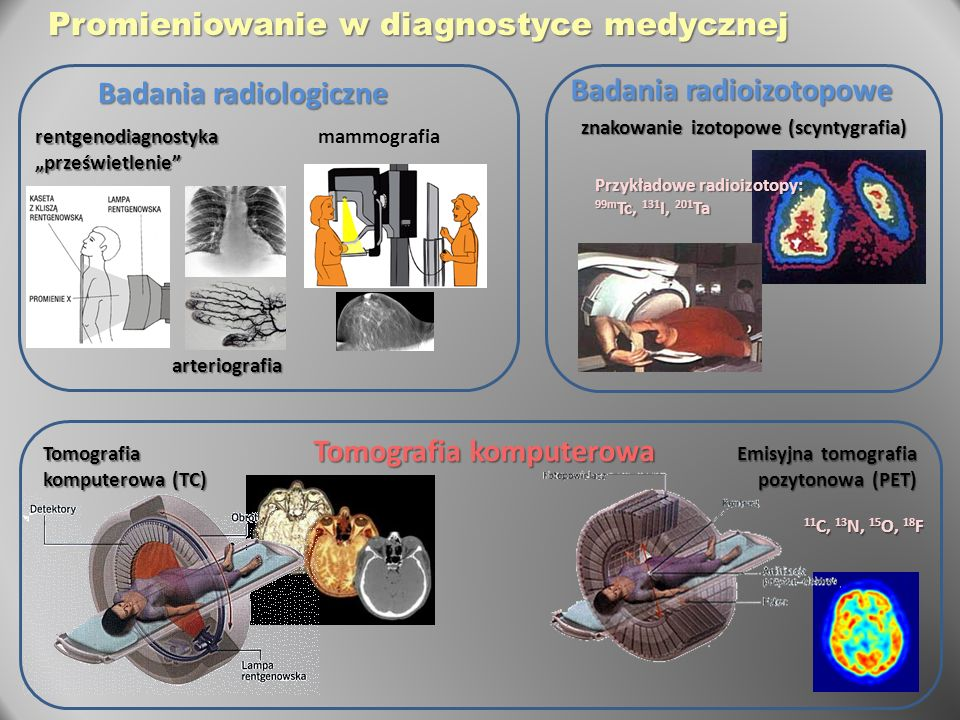 Badania radiologiczne Tomografia komputerowa Badania radioizotopowe Emisyjna tomografia pozytonowa (PET) arteriografia Tomografia komputerowa (TC) zna