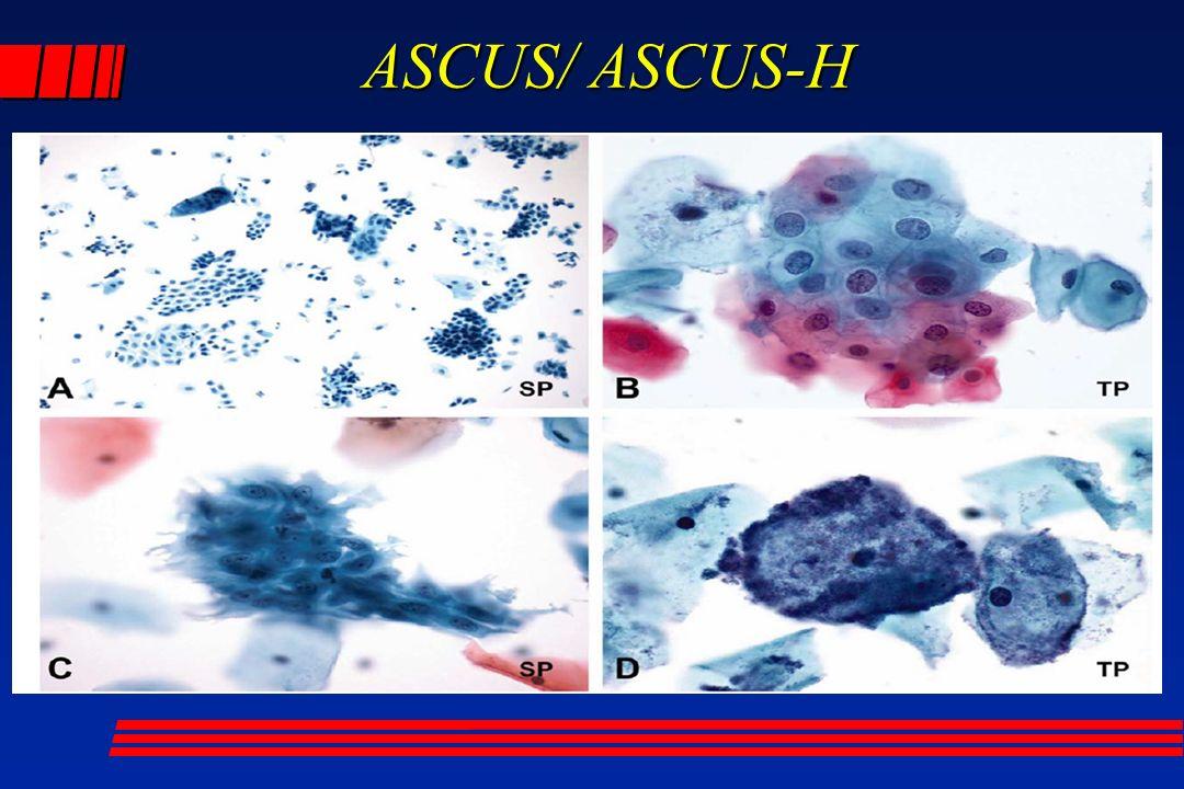 ASCUS/ ASCUS-H ASCUS/ ASCUS-H