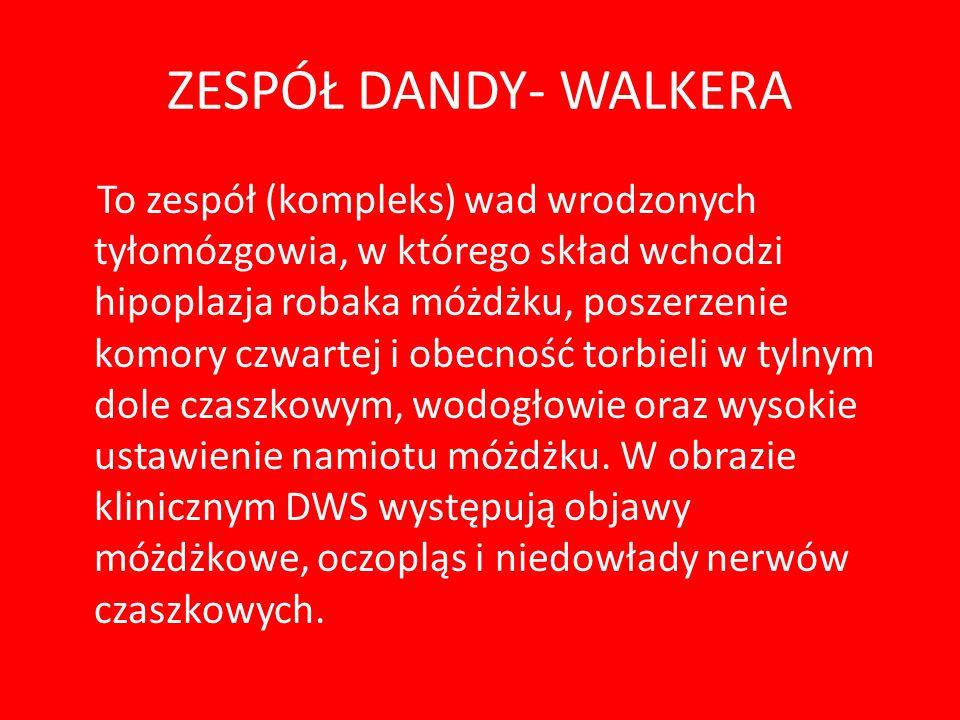 NETOGRAFIA www.gen.org.pl - Stowarzyszenie na rzecz Dzieci z Zaburzeniami Genetycznymi www.gen.org.pl www.rettsyndrom.gd.pl – Ogólnopolskie Stowarzysz