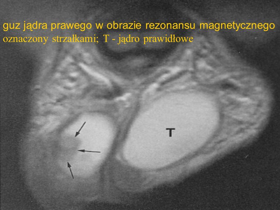 guz jądra prawego w obrazie rezonansu magnetycznego oznaczony strzałkami; T - jądro prawidłowe