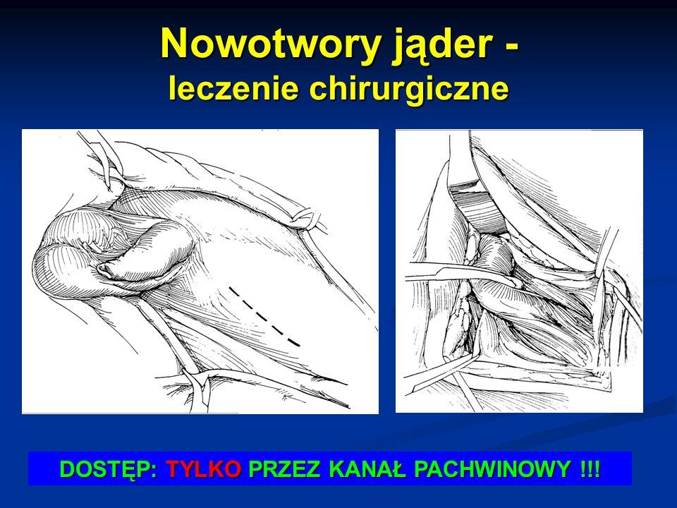 Nowotwory jąder - leczenie chirurgiczne DOSTĘP: TYLKO PRZEZ KANAŁ PACHWINOWY !!!