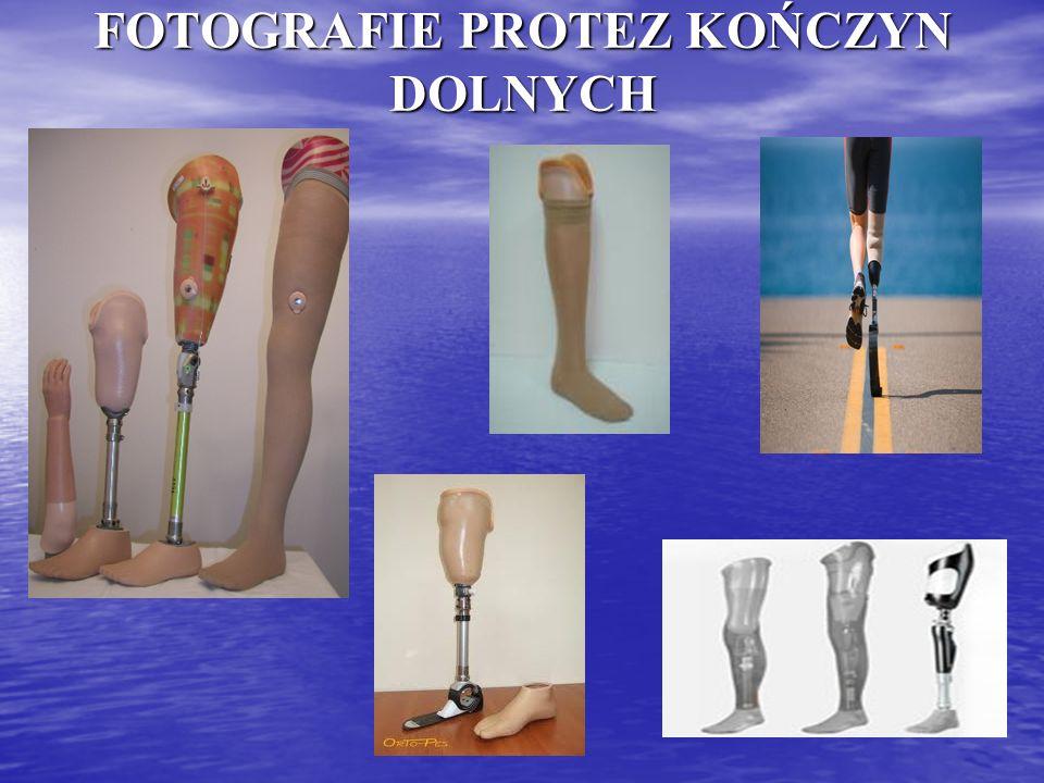 Proteza mechaniczna przedramienia