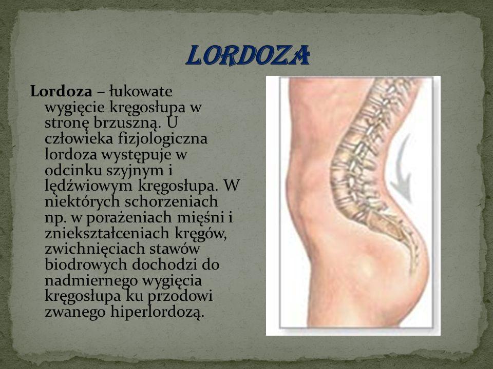 Lordoza – łukowate wygięcie kręgosłupa w stronę brzuszną.