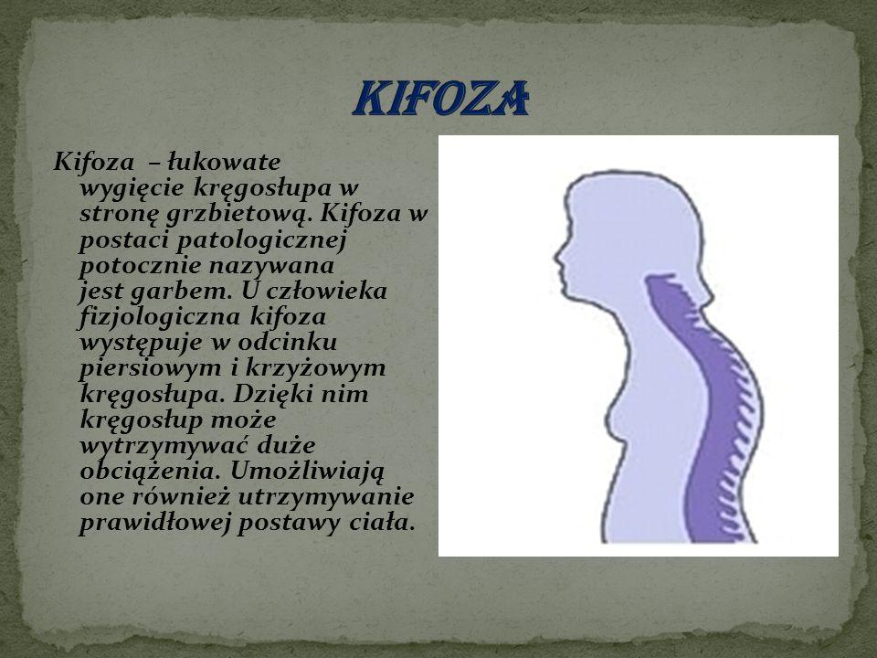 Kifoza – łukowate wygięcie kręgosłupa w stronę grzbietową. Kifoza w postaci patologicznej potocznie nazywana jest garbem. U człowieka fizjologiczna ki