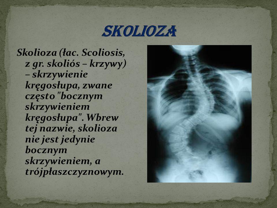 Skolioza (łac. Scoliosis, z gr. skoliós – krzywy) – skrzywienie kręgosłupa, zwane często