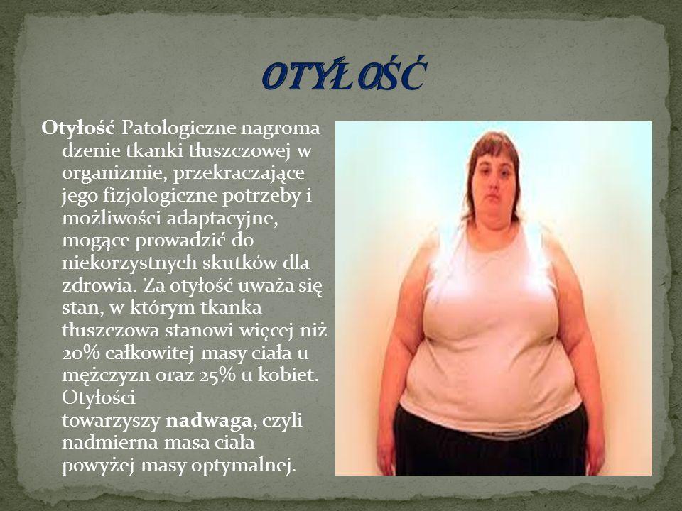 Otyłość Patologiczne nagroma dzenie tkanki tłuszczowej w organizmie, przekraczające jego fizjologiczne potrzeby i możliwości adaptacyjne, mogące prowadzić do niekorzystnych skutków dla zdrowia.