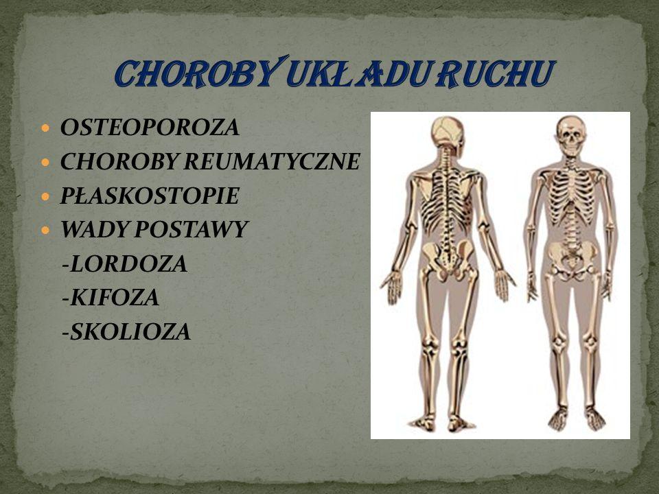 OSTEOPOROZA CHOROBY REUMATYCZNE PŁASKOSTOPIE WADY POSTAWY -LORDOZA -KIFOZA -SKOLIOZA