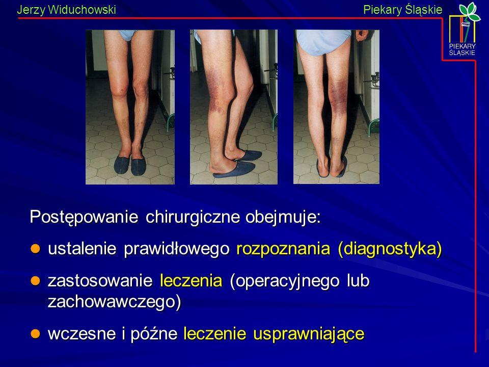 Piekary Śląskie Jerzy WiduchowskiPiekary Śląskie Postępowanie chirurgiczne obejmuje: ustalenie prawidłowego rozpoznania (diagnostyka) ustalenie prawid