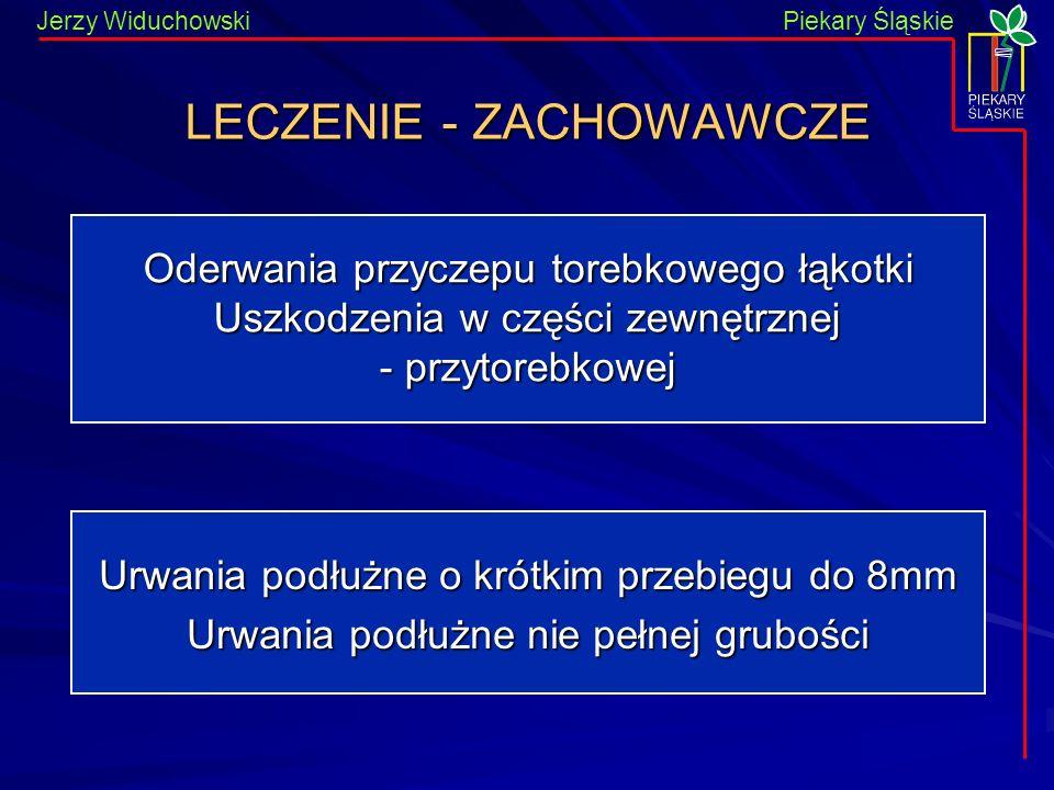 Piekary Śląskie Jerzy WiduchowskiPiekary Śląskie LECZENIE - ZACHOWAWCZE Oderwania przyczepu torebkowego łąkotki Uszkodzenia w części zewnętrznej - prz