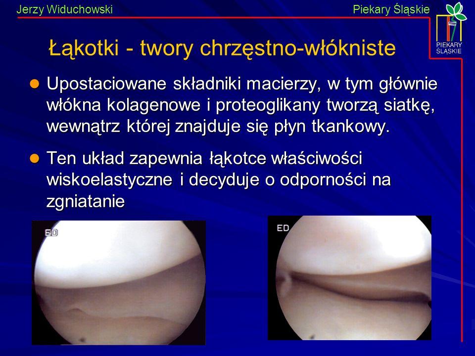 Piekary Śląskie Jerzy WiduchowskiPiekary Śląskie Łąkotki - twory chrzęstno-włókniste Upostaciowane składniki macierzy, w tym głównie włókna kolagenowe i proteoglikany tworzą siatkę, wewnątrz której znajduje się płyn tkankowy.