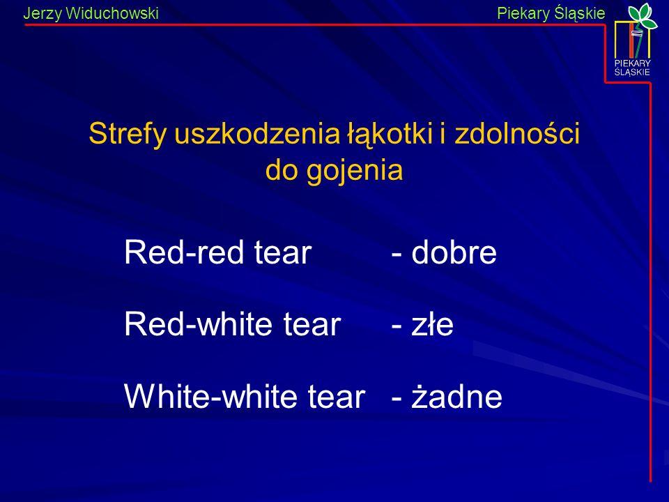 Piekary Śląskie Jerzy WiduchowskiPiekary Śląskie Strefy uszkodzenia łąkotki i zdolności do gojenia Red-red tear- dobre Red-white tear- złe White-white tear- żadne