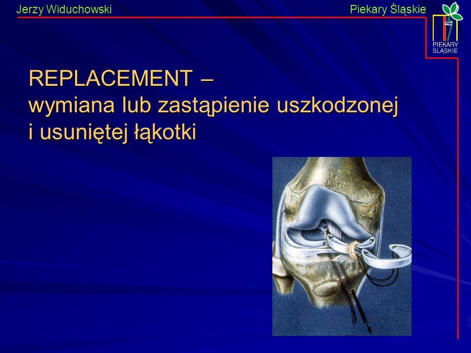 Piekary Śląskie Jerzy WiduchowskiPiekary Śląskie REPLACEMENT – wymiana lub zastąpienie uszkodzonej i usuniętej łąkotki