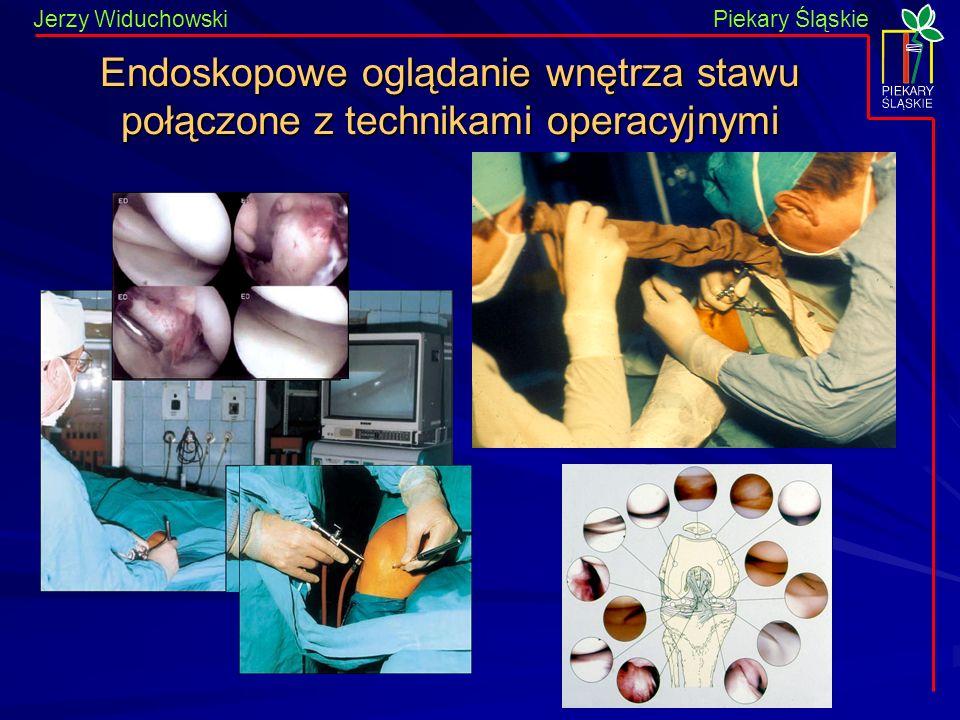 Piekary Śląskie Jerzy WiduchowskiPiekary Śląskie Endoskopowe oglądanie wnętrza stawu połączone z technikami operacyjnymi