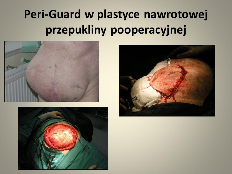 Peri-Guard w plastyce nawrotowej przepukliny pooperacyjnej