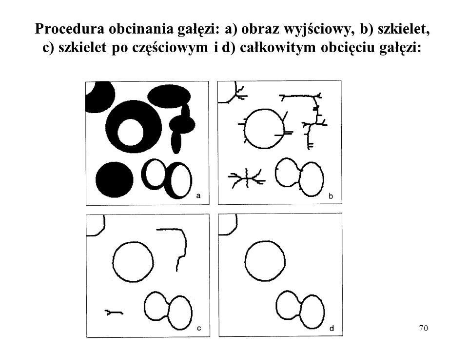 70 Procedura obcinania gałęzi: a) obraz wyjściowy, b) szkielet, c) szkielet po częściowym i d) całkowitym obcięciu gałęzi: