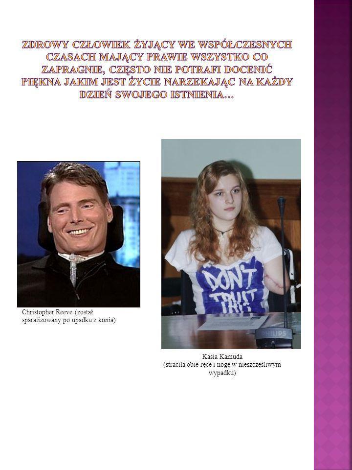 Kasia Kamuda (straciła obie ręce i nogę w nieszczęśliwym wypadku) Christopher Reeve (został sparaliżowany po upadku z konia)