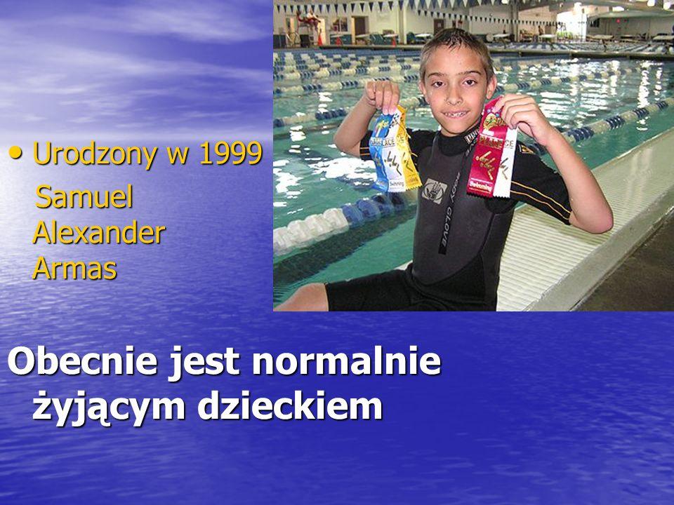 Urodzony w 1999 Urodzony w 1999 Samuel Alexander Armas Samuel Alexander Armas Obecnie jest normalnie żyjącym dzieckiem
