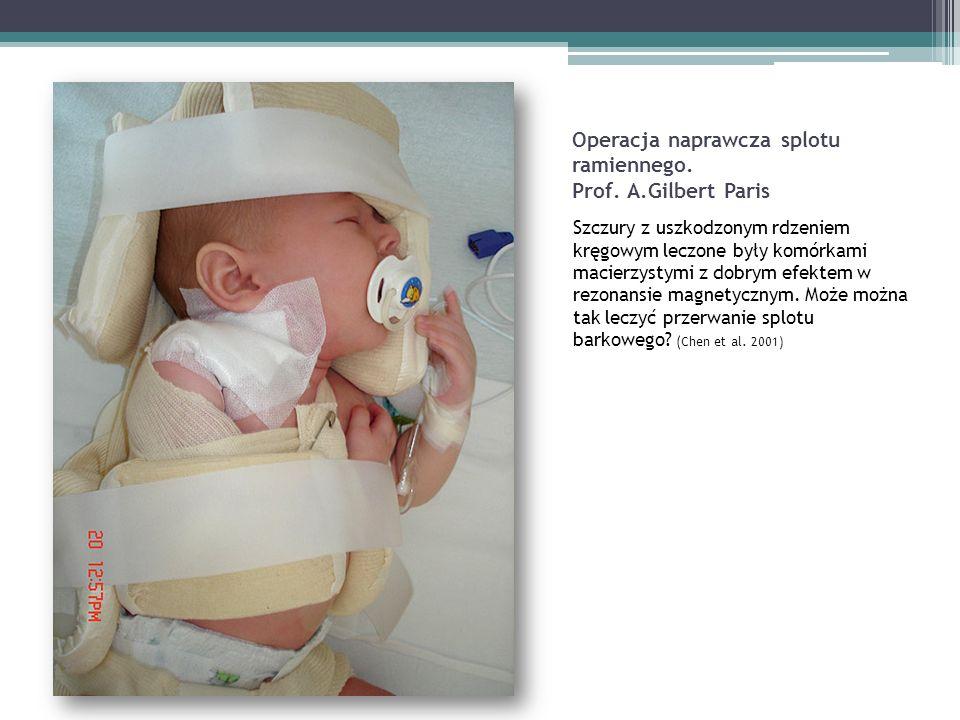 Operacja naprawcza splotu ramiennego.Prof.