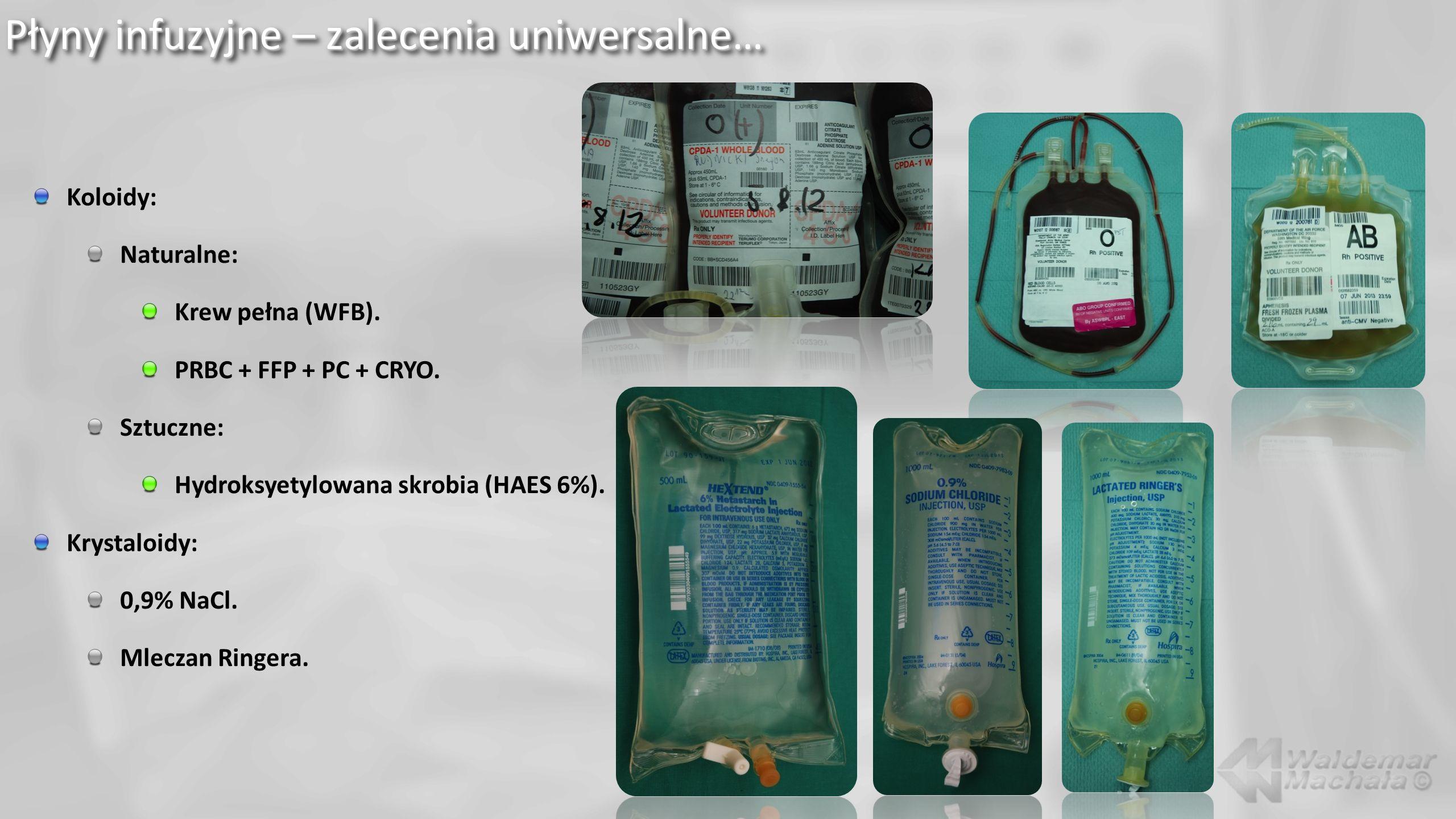 Płyny infuzyjne – zalecenia uniwersalne… Koloidy: Naturalne: Krew pełna (WFB).