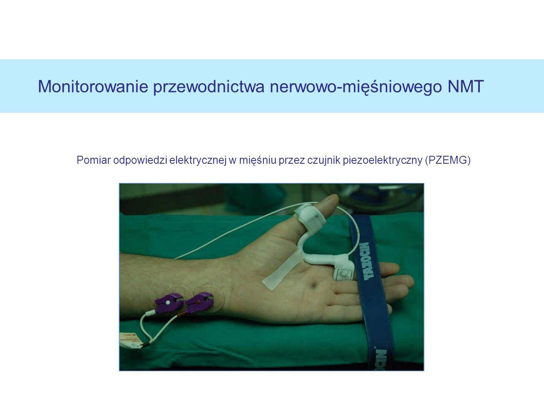 Pomiar odpowiedzi elektrycznej w mięśniu przez czujnik piezoelektryczny (PZEMG) Monitorowanie przewodnictwa nerwowo-mięśniowego NMT