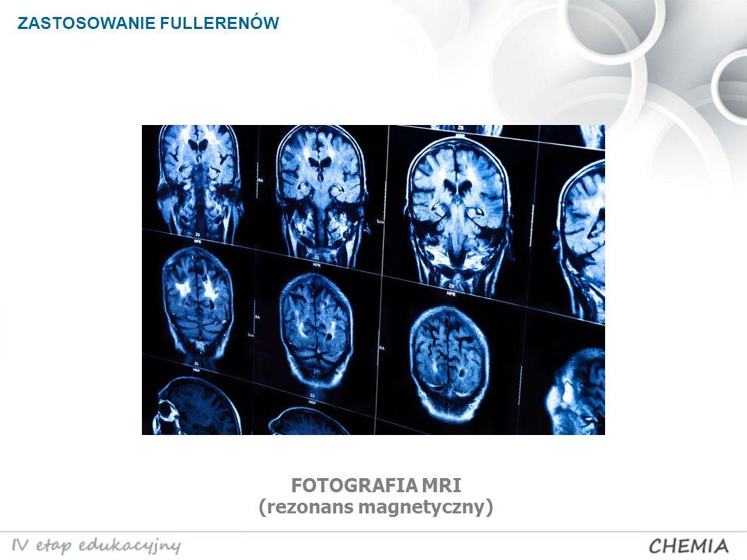 ZASTOSOWANIE FULLERENÓW FOTOGRAFIA MRI (rezonans magnetyczny)