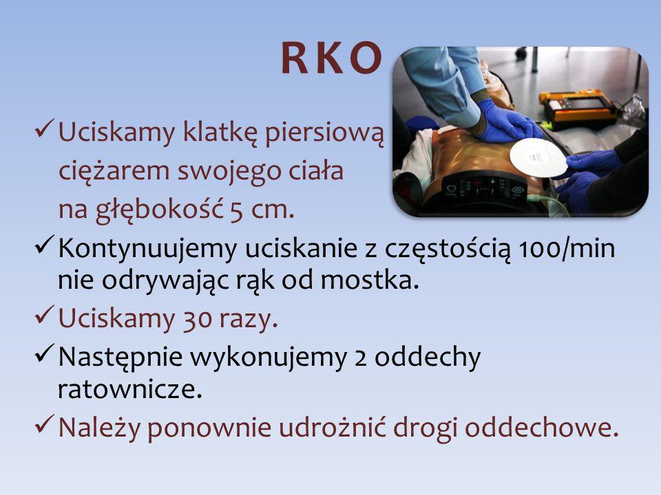 RKO Uciskamy klatkę piersiową ciężarem swojego ciała na głębokość 5 cm. Kontynuujemy uciskanie z częstością 100/min nie odrywając rąk od mostka. Ucisk