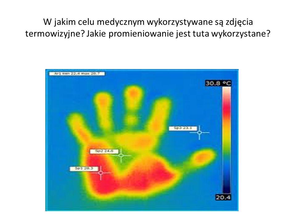 W jakim celu medycznym wykorzystywane są zdjęcia termowizyjne? Jakie promieniowanie jest tuta wykorzystane?