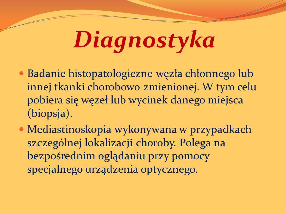 Diagnostyka Badanie histopatologiczne węzła chłonnego lub innej tkanki chorobowo zmienionej.