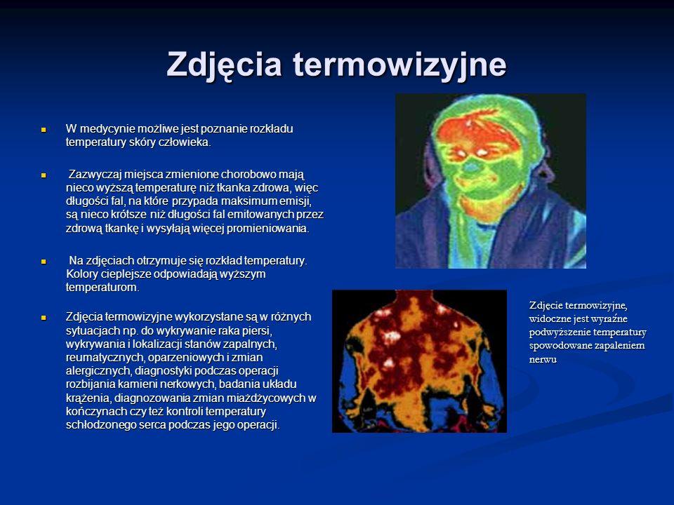 Zdjęcia termowizyjne W medycynie możliwe jest poznanie rozkładu temperatury skóry człowieka. W medycynie możliwe jest poznanie rozkładu temperatury sk