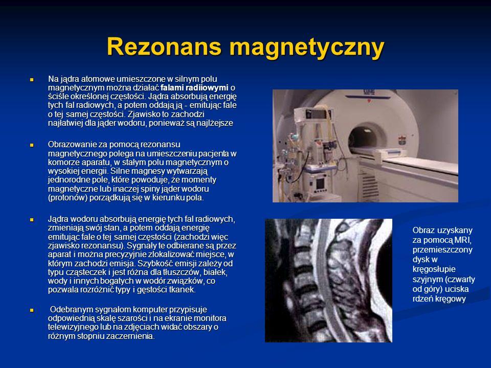Rezonans magnetyczny Na jądra atomowe umieszczone w silnym polu magnetycznym można działać falami radiiowymi o ściśle określonej częstości. Jądra abso