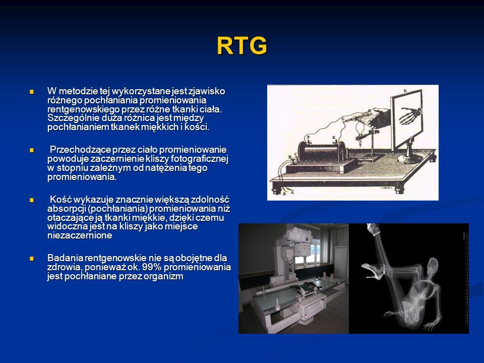 RTG W metodzie tej wykorzystane jest zjawisko różnego pochłaniania promieniowania rentgenowskiego przez różne tkanki ciała. Szczególnie duża różnica j