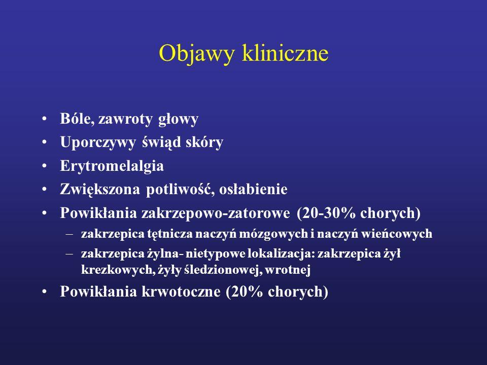 Objawy kliniczne Bóle, zawroty głowy Uporczywy świąd skóry Erytromelalgia Zwiększona potliwość, osłabienie Powikłania zakrzepowo-zatorowe (20-30% chor