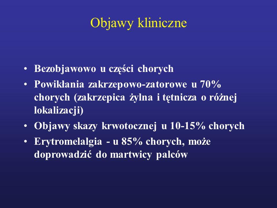 Objawy kliniczne Bezobjawowo u części chorych Powikłania zakrzepowo-zatorowe u 70% chorych (zakrzepica żylna i tętnicza o różnej lokalizacji) Objawy s
