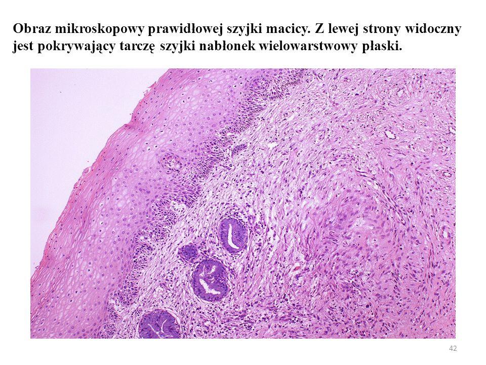 Prawidłowy obraz mikroskopowy cytologii szyjki macicy – widoczne są złuszczone komórki nabłonka wielowarstwowego płaskiego z tarczy szyjki oraz komórki nabłonka gruczołowego z kanału szyjki 43