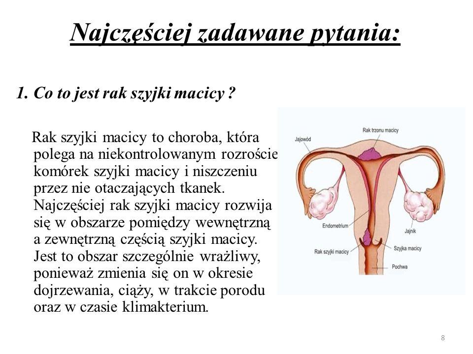 2.Jak częsty jest rak szyjki macicy .