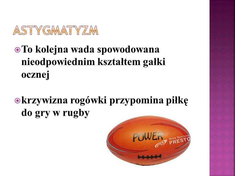 To kolejna wada spowodowana nieodpowiednim kształtem gałki ocznej krzywizna rogówki przypomina piłkę do gry w rugby