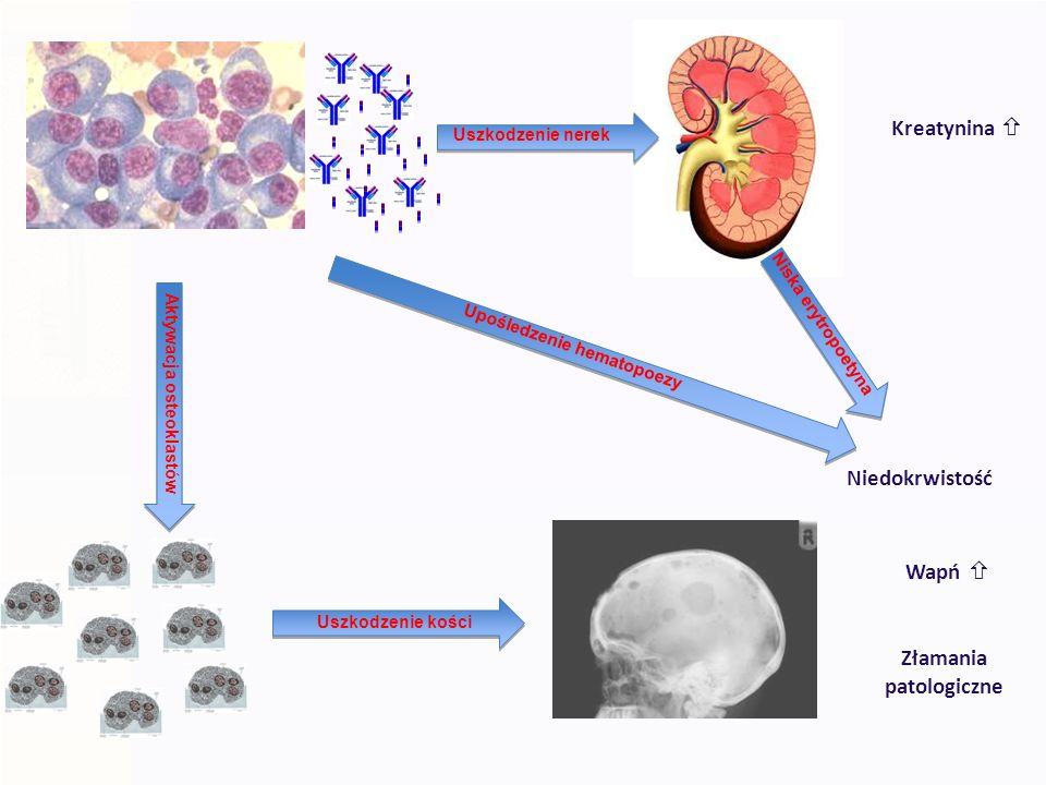 Określenie masy guza wg Durie i Salmon I MAŁA MASA NOWOTWORU ( <0,6 x 10 12 komórek/m 2 ) wszystkie poniższe kryteria a) Hgb > 12g/dl b) Ca < 2,75 mmol/l c) Rtg bez zmian lub pojedyncze ognisko d) Białko M < 50g/l (IgG); < 30g/l (IgA); łańcuchy lekkie w moczu < 4g/24h II POŚREDNIA (0,6 x 10 12 komórek/m 2 – 1,2 x 10 12 komórek/ m 2 ) inne objawy niż w I i III III DUŻA (>1,2 x 10 12 komórek/m 2) jedno z poniższych a) Hgb < 8,5 g/dl b) Ca > 2,75 mmol/l c) Rtg zaawansowane zmiany osteolityczne d) Białko M > 70g/l (IgG); > 50g/l (IgA); łańcuchy lekkie w moczu > 12g/24h