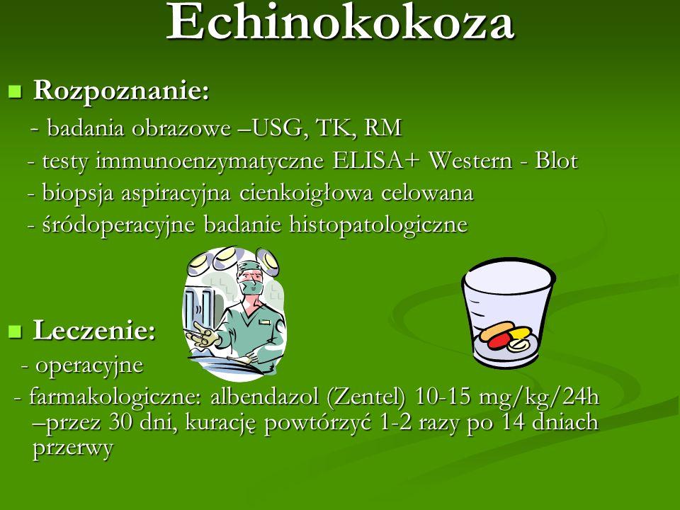 Echinokokoza Rozpoznanie: Rozpoznanie: - badania obrazowe –USG, TK, RM - badania obrazowe –USG, TK, RM - testy immunoenzymatyczne ELISA+ Western - Blo