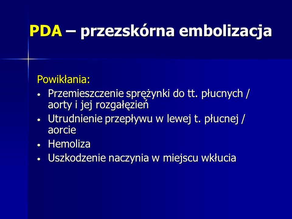 PDA – przezskórna embolizacja Powikłania: Przemieszczenie sprężynki do tt. płucnych / aorty i jej rozgałęzień Przemieszczenie sprężynki do tt. płucnyc