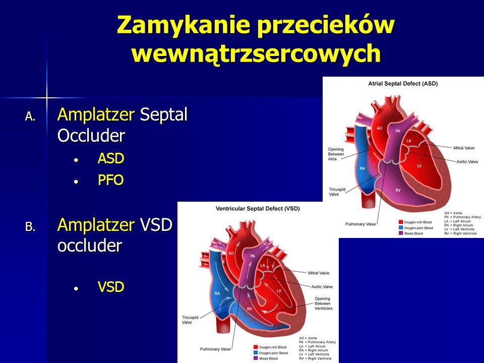 Zamykanie przecieków wewnątrzsercowych A. Amplatzer Septal Occluder ASD ASD PFO PFO B. Amplatzer VSD occluder VSD VSD
