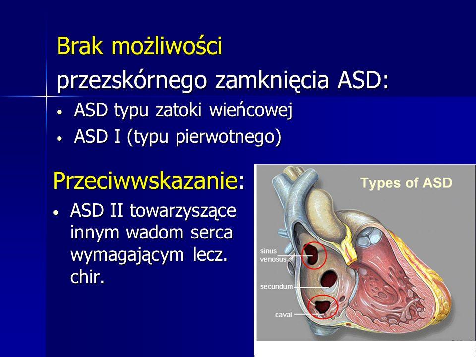 Brak możliwości przezskórnego zamknięcia ASD: ASD typu zatoki wieńcowej ASD typu zatoki wieńcowej ASD I (typu pierwotnego) ASD I (typu pierwotnego) Pr